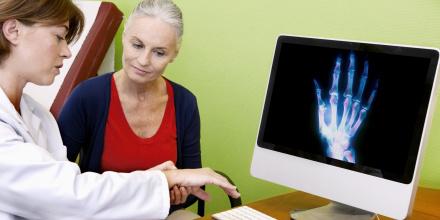 Arthrose : mon programme anti-douleur