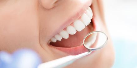 Prise en charge des soins dentaires : vers un remboursement intégral à partir de 2021
